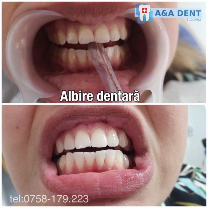 Albire-dentară-1-720x7209978979789787