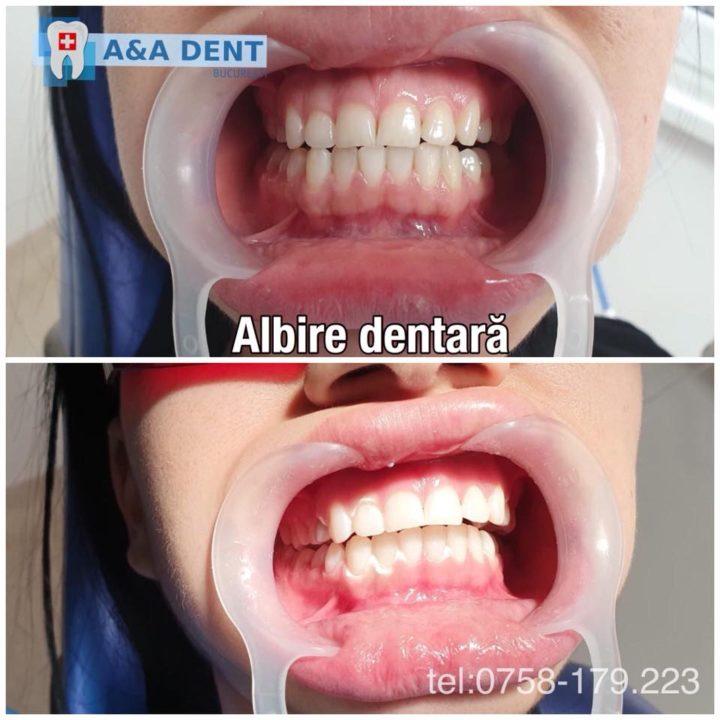 Albire-dentară-720x720