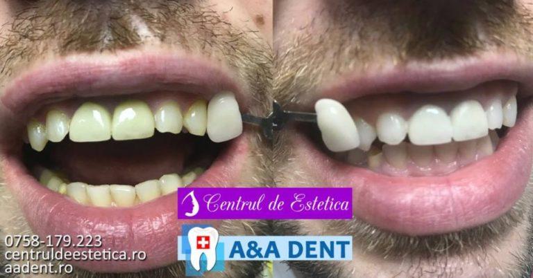 Albire-dentara-profesionala-2-e1557066187452.jpg