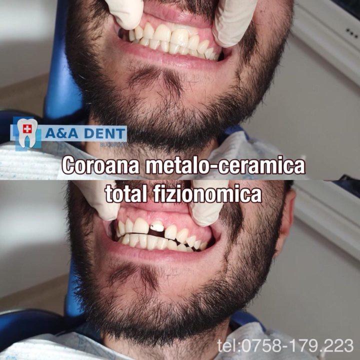 Coroana-metalo-ceramica-total-fizionomica-🏩-CENTRUL-DE-ESTETICA-si-🏥-AA-DENT-720x720
