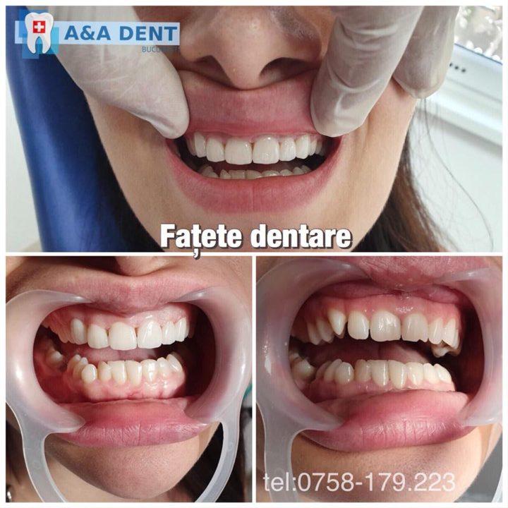 FATETELE-DENTARE-720x720.jpg