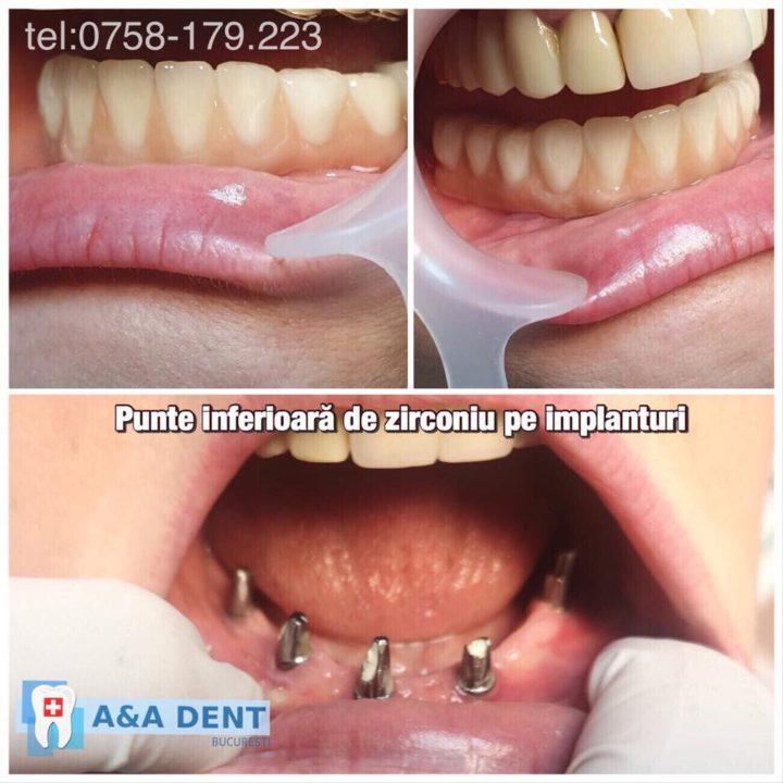 Punte-inferioara-de-zirconiu-pe-implanturi-720x720