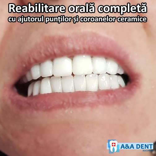 Reabilitare-orala-completa-cu-ajutorul-puntilor-si-al-coroanelor-ceramice