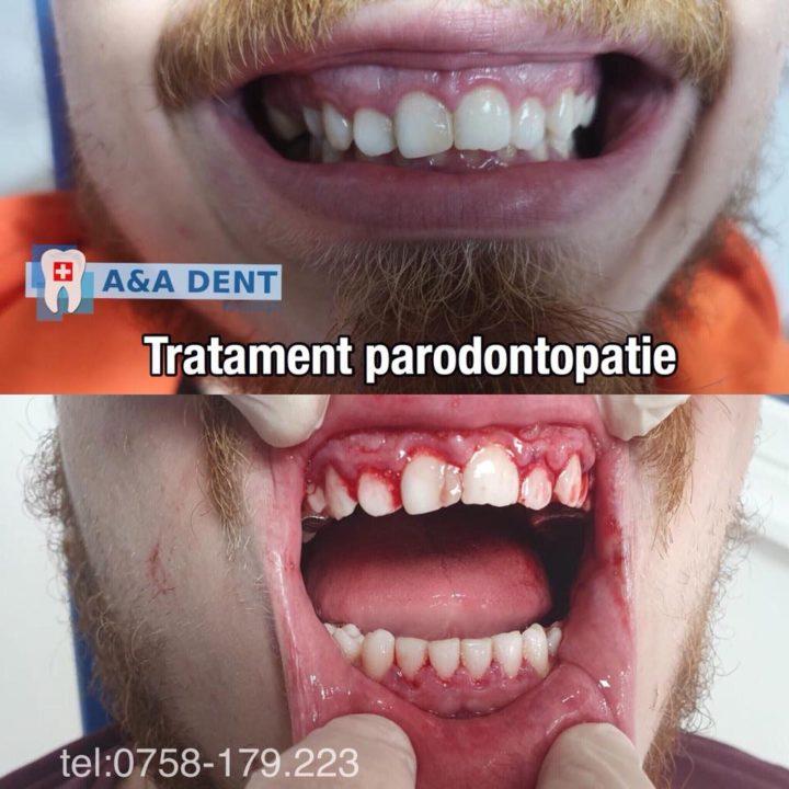 Tratament-parodontopatie-🏩-CENTRUL-DE-ESTETICA-si-🏥-AA-DENT-720x720