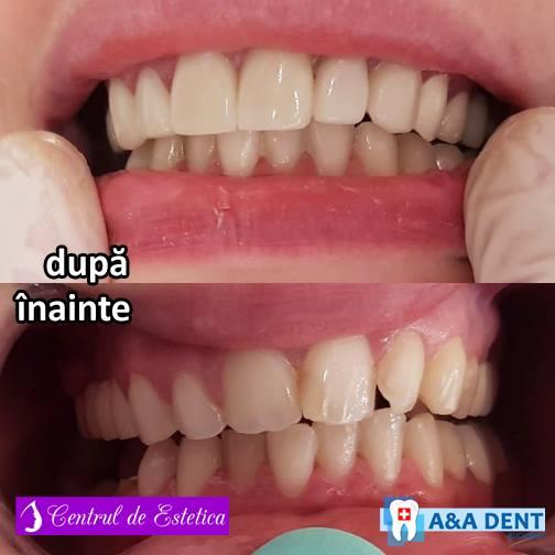 fatete-dentare-1.jpg