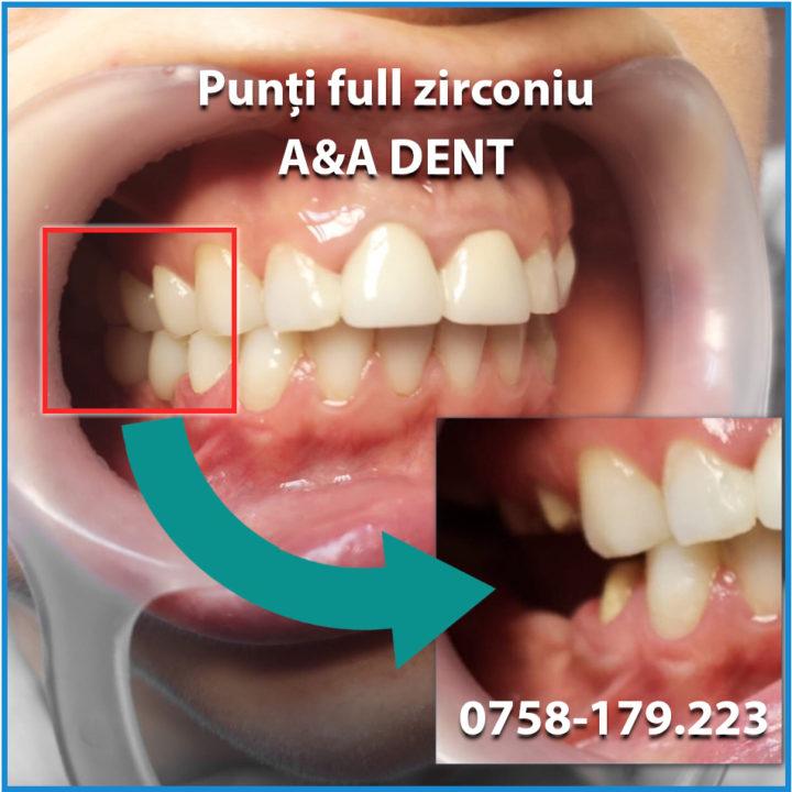 punti-full-zirconiu-AA-DENT-1-720x720.jpg