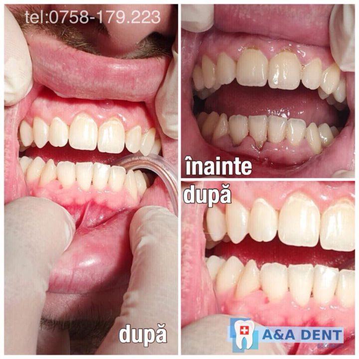 tratament-parodontopatie-parodontoza-aa-dent-720x720