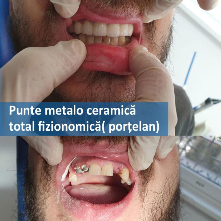 punte-metalo-ceramica-total-fizionomica