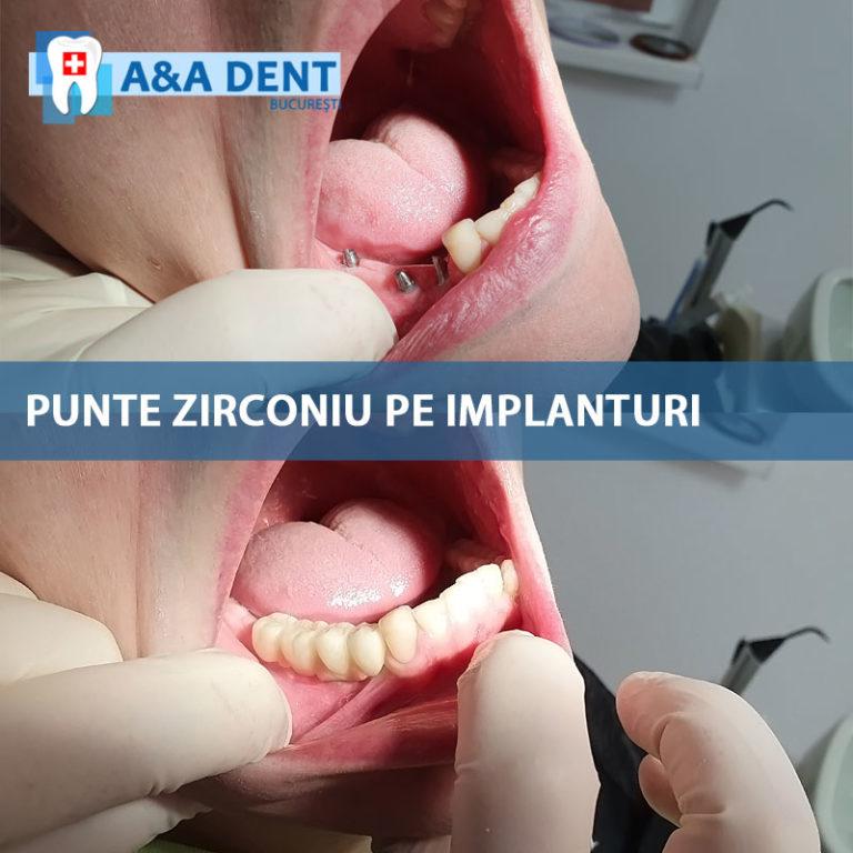 punte zirconiu pe implanturi