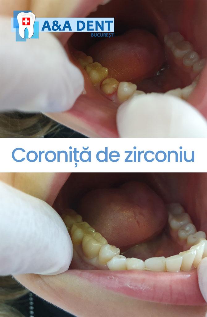 coronita-de-zircou