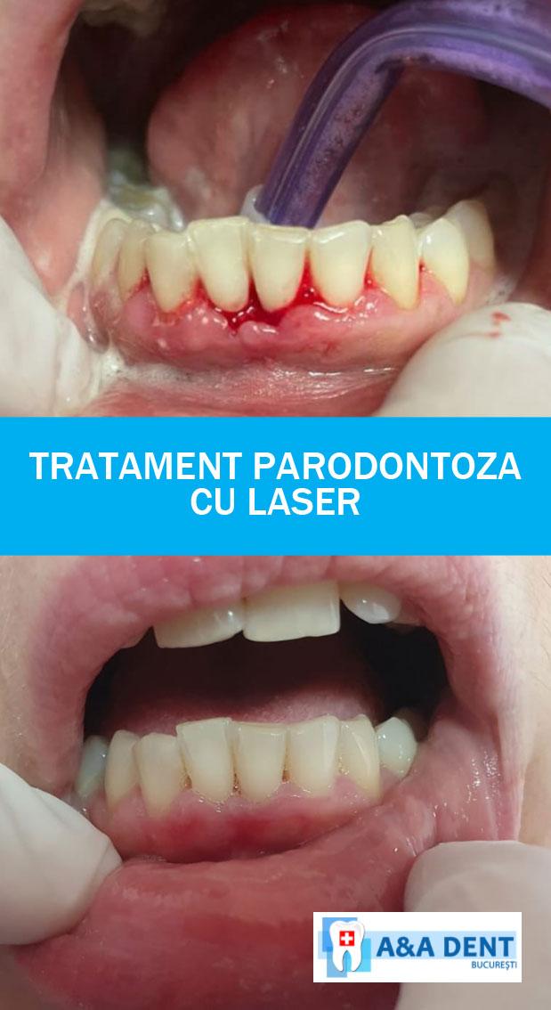 aadent-laser-parodontoza